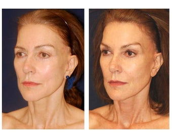 Cheek Augmentation before 415264