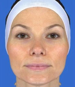 Chemical Peel after 469055