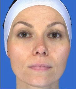 Chemical Peel before 469055