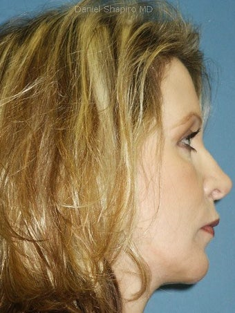 Chin Augmentation, Revision Rhinoplasty, and Facial Rejuvenation  after 250133