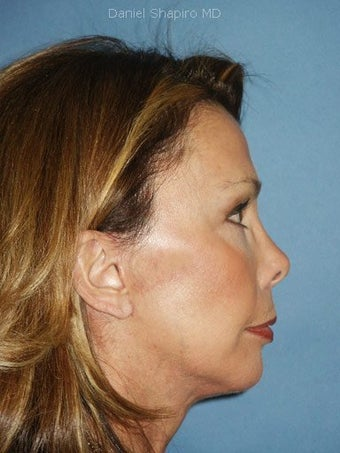 Chin augmentation with facial rejuvenation after 250151