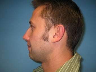 chin implant after 284116