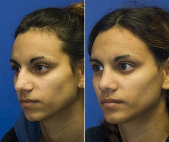 Chin Implantation with Rhinoplasty after 295372