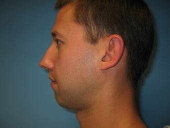 chin implant before 284116