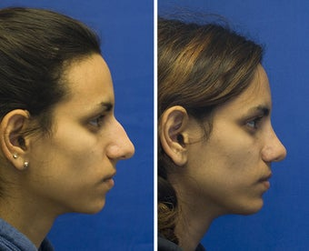 Chin Implantation with Rhinoplasty before 295372