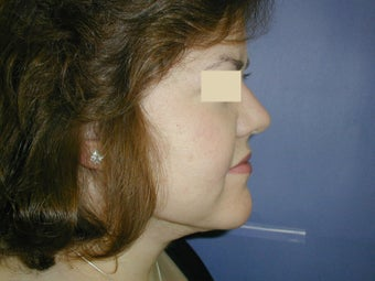 Neck Liposuction after 93325
