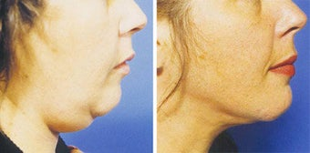 Chin Liposuction before 640674
