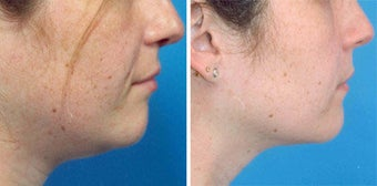 Chin Liposuction before 640677