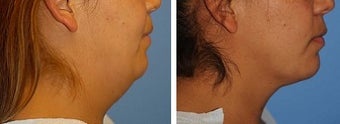 Chin Liposuction before 640695