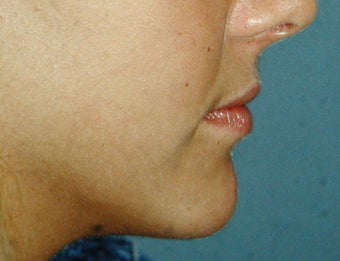 Chin Augmentation after 251515
