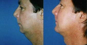 Chin Augmentation before 633488