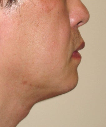 Chin Augmentation with Liposuction Neck after 365433