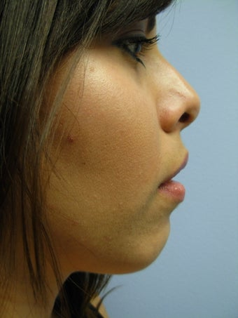 Chin Augmentation after 375737