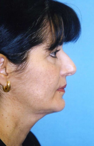 Chin Implant after 409957