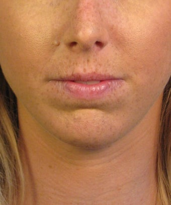 Chin Implant after 414153