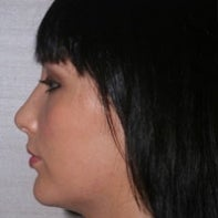 Chin Implant and Neck Liposuction after 443093
