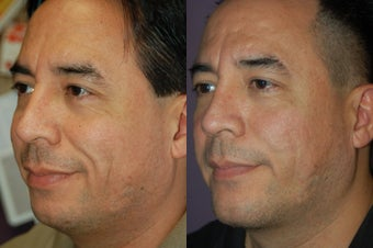 chin implant before 376406