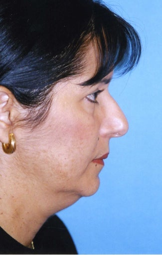Chin Implant before 409957