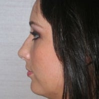 Chin Implant and Neck Liposuction before 443093