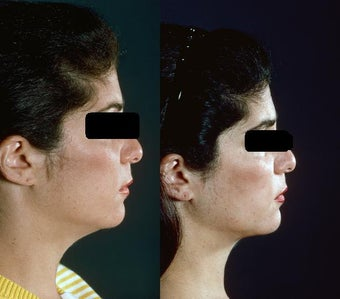Chin and Neck Liposuction before 449933