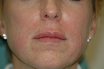 Lip augmentation after 340185