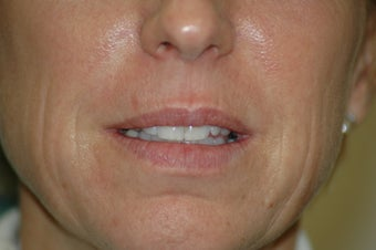Lip augmentation before 340185