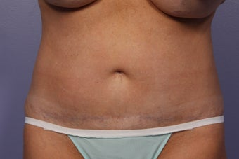 CoolSculpting after 429620