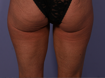 CoolSculpting to Banana Roll, Upper Posterior Thighs after 563822