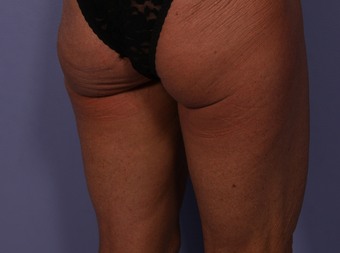 CoolSculpting to Banana Roll, Upper, Posterior thighs after 563824
