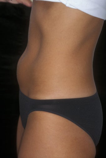 CoolSculpting treatment of unwanted tummy fat before 359376