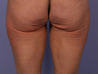 CoolSculpting to Banana Roll, Upper Posterior Thighs before 563822