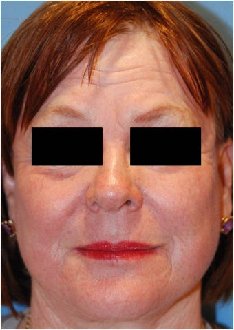 CO2 Laser Resurfacing ~ Active & Deep FX after 130742
