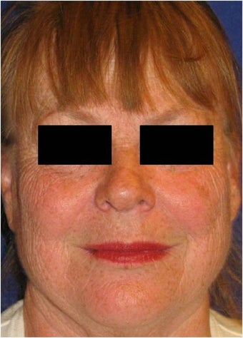 CO2 Laser Resurfacing ~ Active & Deep FX before 130742