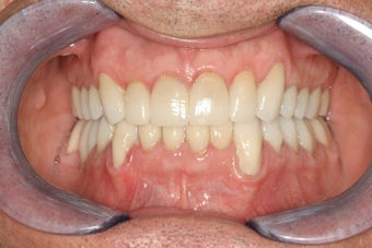 Porcelain veneers and crowns after 112062