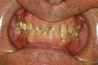 Porcelain veneers and crowns before 112062