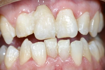 Dental implant to replace missing upper front incisor before 237968