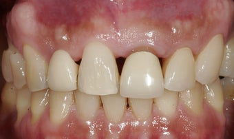 Dental implants in the smile zone before 237970