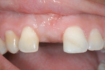 Replacment of missing tooth with dental implant before 238995