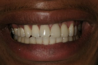 Dental Implants after 415249
