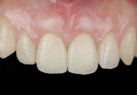 Dental Implants For Missing Front Teeth after 504315