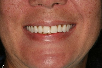 Dental implants, implant overdenture after 569224