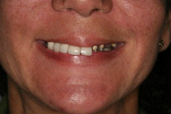 Dental implants, implant overdenture before 569224