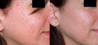 Dermabrasion before 306808