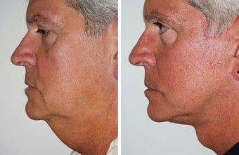 Facelift with dermabrasion before 91396