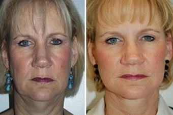 Face lift with dermabrasion  before 91405