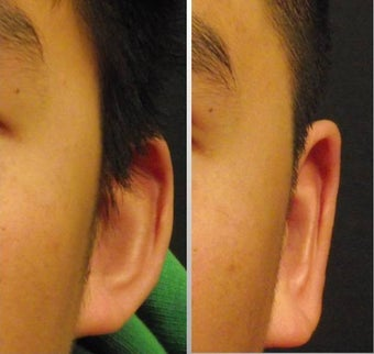 Ear Surgery - Otoplasty before 468319