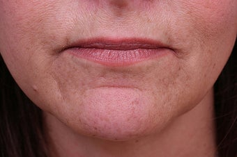 Evolence Collagen for Marionette Lines and Chin  before 114168