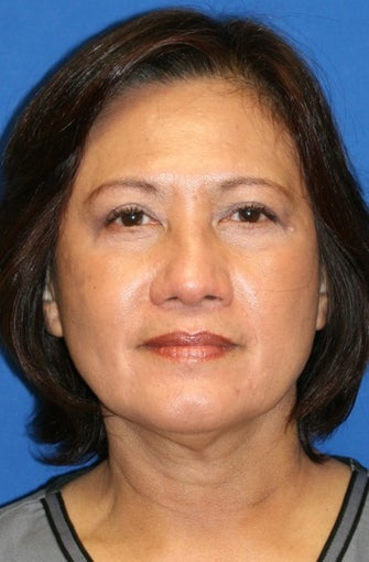 Upper Blepharoplasty,Lower Blepharoplasty, and Lower Eyelid Skin Pinch after 476840