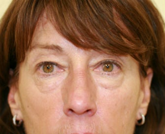Upper and Lower eyelid blepharoplasty before 380415