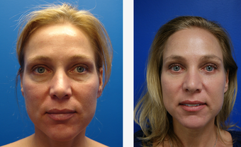Blepharoplasty before 625415